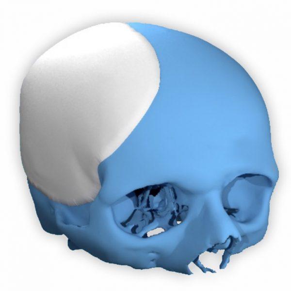 Poriferous Neurosurgery